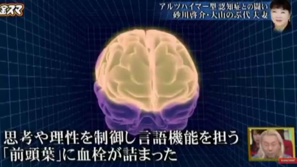 大山のぶ代、認知症07