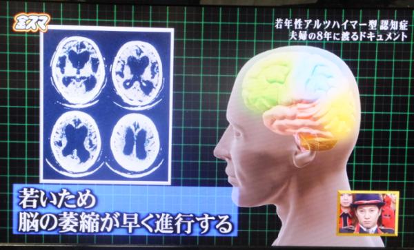 認知症02