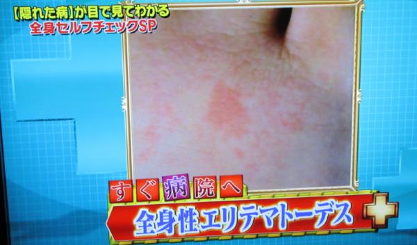 足に赤い斑点09