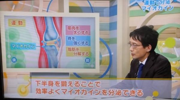 ひざ変形症09