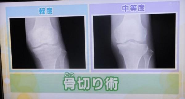 骨切り術1