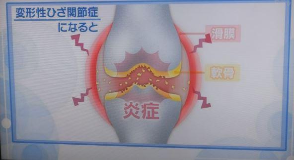 変形性膝関節症とは01.